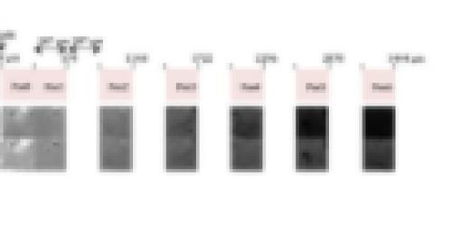 Comment se déplace une enzyme dans un environnement solide ?