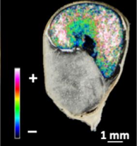 image reconstituée en fausses couleurs de la LysoPC piégée dans l'amidon de l'albumen de maïs