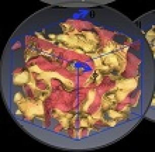 Carte d'anisotropie
