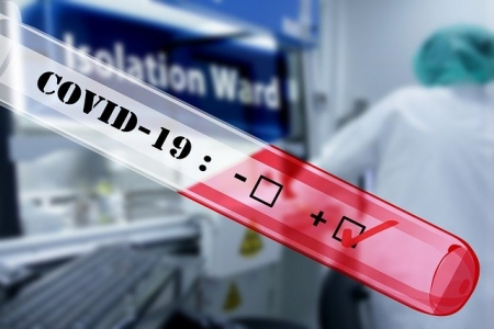 Covid-19: Measuring the immune response to better detect the virus