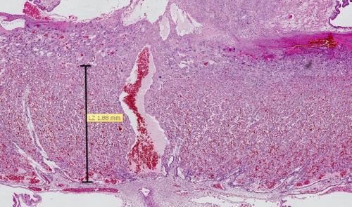 Placenta de rat (Sprague Dawley) au 21ème jour de gestation, coloré à HE (l'hématoxyline et l'éosine). La zone mesurée est le labyrinthe où se trouve le réseau capillaire placentaire.