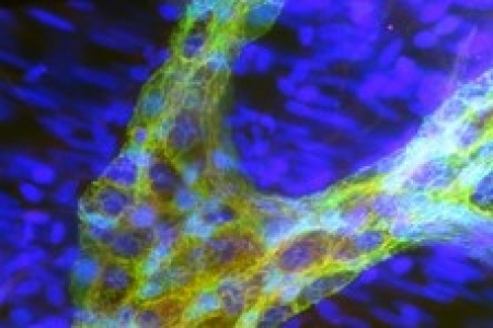 Les ganglions d'Auerbach sont localisés dans les muscles de l'intestin dont ils contrôlent les mouvements et les contractions. Cette image met en évidence les cellules gliales entériques (en vert) au milieu d'un ganglion d'Auerbach. En rouge : marquage du récepteur des neurotrophines (facteurs essentiels à la différenciation et à la survie des neurones) ; en bleu : marquage des noyaux des cellules.