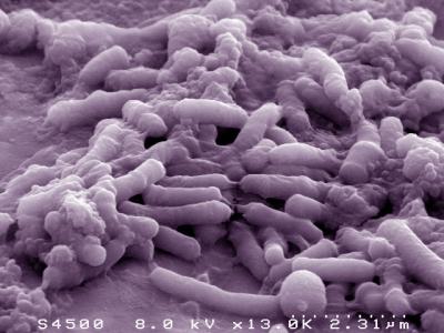 Journée biopréservation et interactions microbiennes